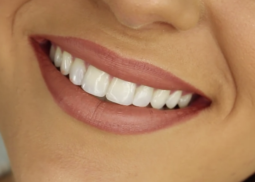 Brits reticent to bare teeth in selfies